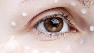 Cum sa scapi de pielea uscata din jurul ochilor